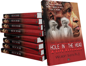 hole-in-the-head-book