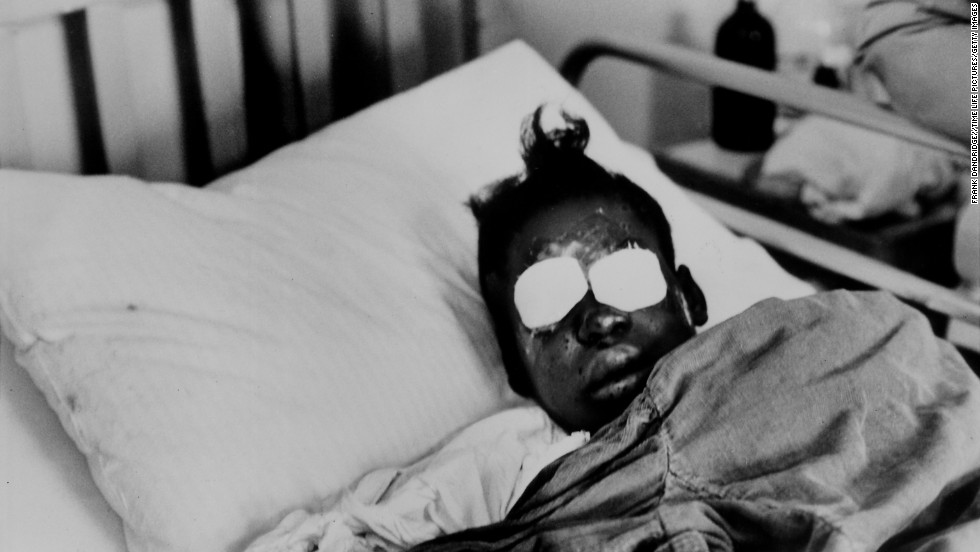 Hospitalized bomb blast victim Sarah Jean Collins, 12, blinded by dynamite explosion set off in basement of church that killed her sister and three other girls as her Sunday school class was ending.  (Photo by Frank Dandridge//Time Life Pictures/Getty Images)