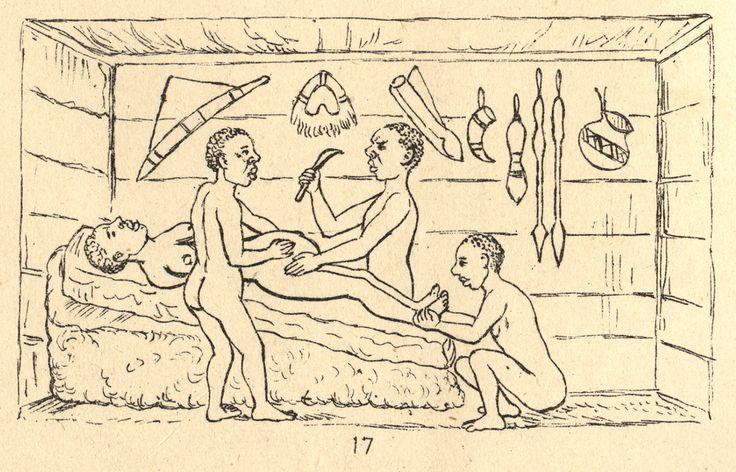 Cesarean in Uganda